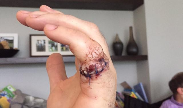 Jamie Donaldson, un mal encuentro con una motosierra